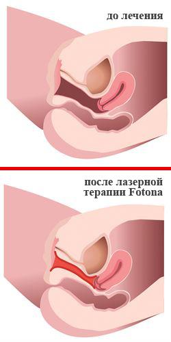 Шок симптомы диагностика лечение